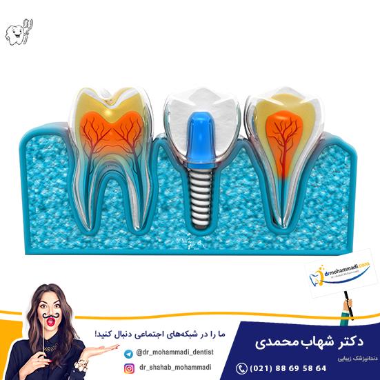 ایمپلنت - دکتر شهاب محمدی